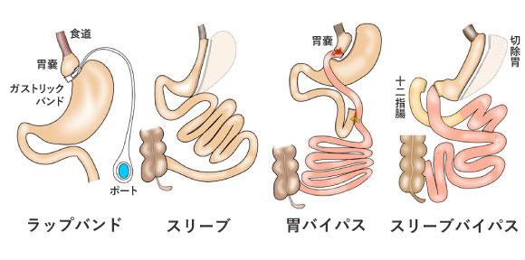 肥満外科治療イラスト